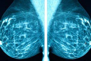 plataforma-cancer-mama-in-situ